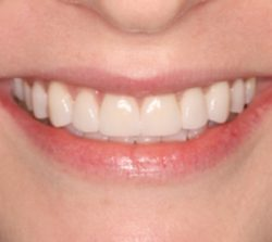 Cosmetic Dentistry - After - Birkitt Dental