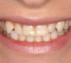 Cosmetic Dentistry - Before - Birkitt Dental